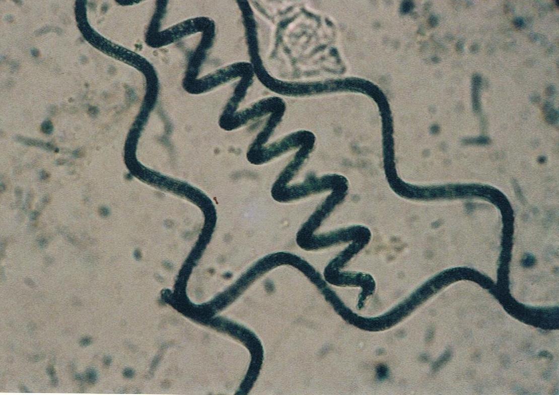 propiedades espirulina microscópio