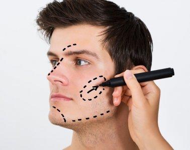 cirugia estetica hombres