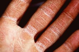 cómo hidratar la piel seca